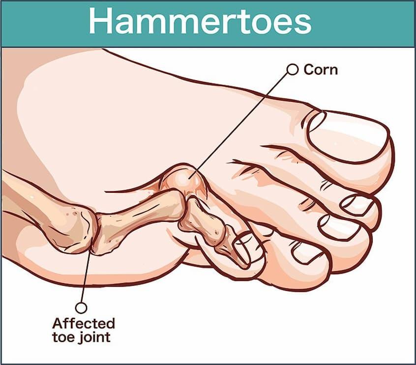 vector illustration of hammer toe